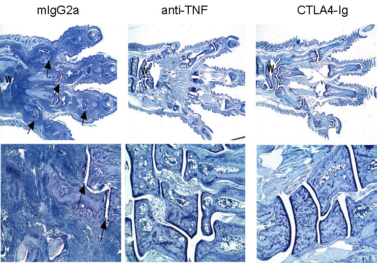 CIA Therapeutic treatment with anti-TNF and CTLA4-Ig – Histological analysis